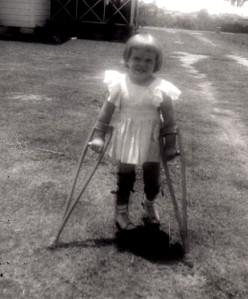 Polio - Leg Braces