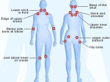Signs You Might HaveFibromyalgia