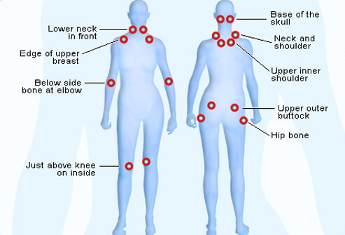 fibromyalgia-s7-illustration-of-tender-points