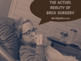 The Back Surgery Monologues