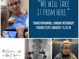 Recovering from Lumbar Fusion Surgery | May 2019